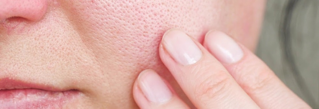 Woman feeling her pores What to Do About Enlarged Pores