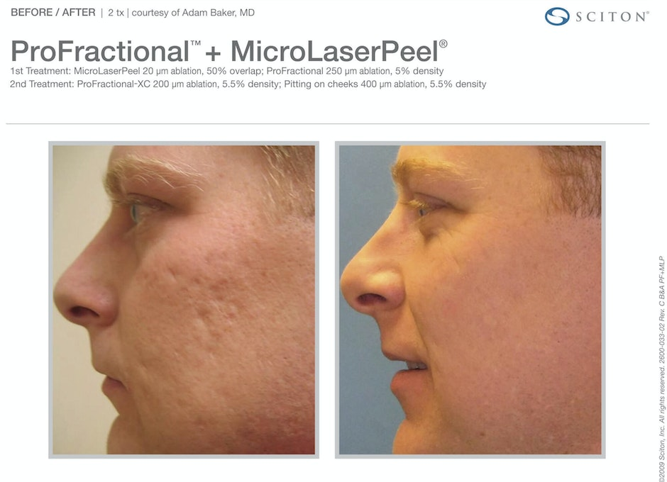 Cosmetic Laser Treatments