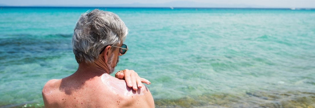 Man applying sunscreen to his shoulder What Areas of the Body Are Most Prone to Skin Cancer?