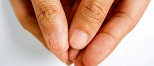 5 Nail Abnormalities Your Dermatologist Can Treat