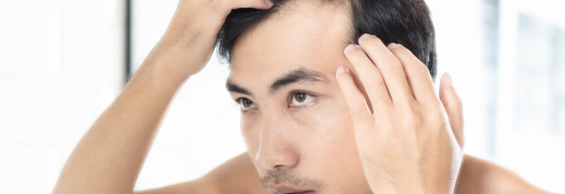 Man applying hair loss product Buyer Beware: How to Spot Scam Hair Loss Products