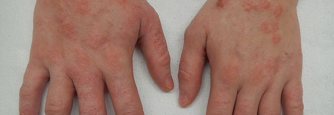 What are the Common Causes of Eczema?