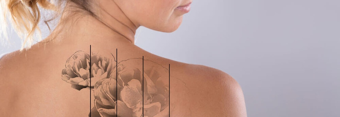 Dermatologist Approved Laser Tattoo Removal Is an Option