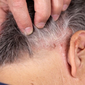 Do I Need to See a Dermatologist About Scalp Psoriasis?