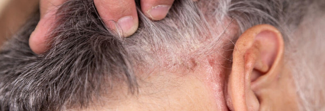Man's scalp with irritation Do I Need to See a Dermatologist About Scalp Psoriasis?