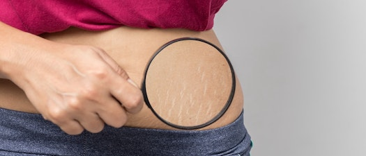 How to Be Proactive with Your Stretch Marks