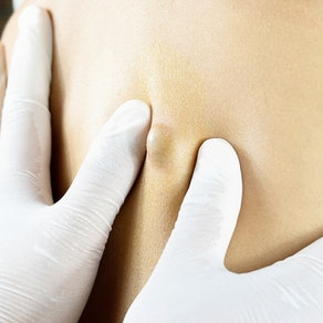 Identifying and Treating Sebaceous Cysts and Acne