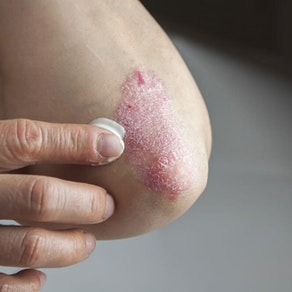 The 10 Best Treatments for Your Psoriasis