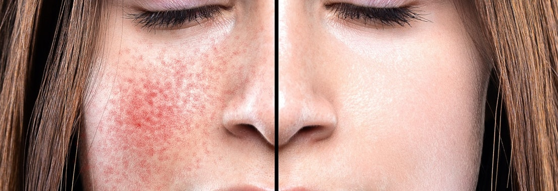 Woman with rosacea on her face 5 Best Ways to Manage Your Rosacea in the Cooler Months