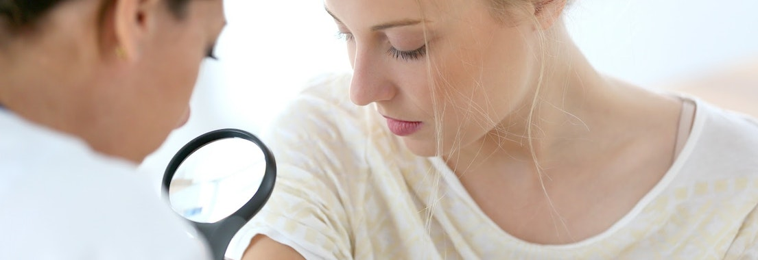 Doctor looking at woman's arm for melanoma Can You Be Too Young for Melanoma?