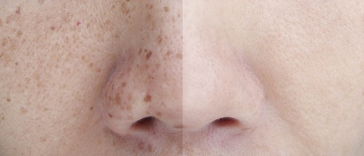 Premier Dermatology Partners freckle treatment Can You Minimize Freckles?