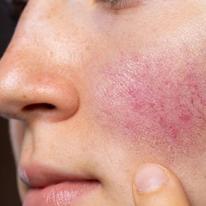 What Are the Common Causes and Symptoms of Rosacea?