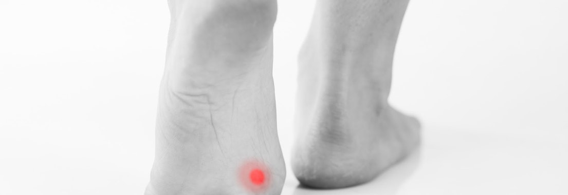 Athlete with wart on their foot How Athletes Are Susceptible to Warts