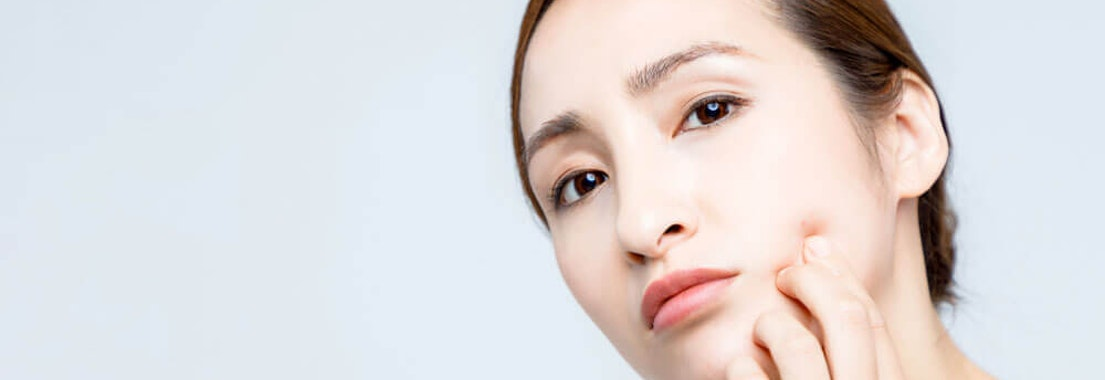 How Cosmetic Acne Treatments Can Restore Confidence