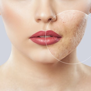 Woman with facial Dermal Optical Thermolysis treatment How Dermal Optical Thermolysis (DOT Therapy) Can Help Your Skin This Winter