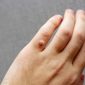 Wart on person's hand How to Detect a Wart and What to Do About Them