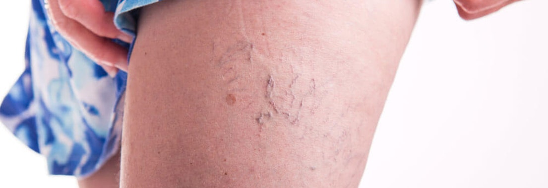 Spider veins on a thigh How to Get the Best Results from Your Spider Vein Treatment