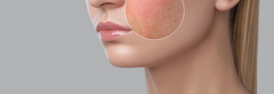 Woman with rosacea on her cheek How to Protect My Skin with Rosacea in the Summer