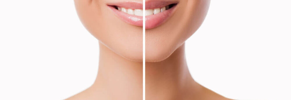 How to Remedy Thinning Lips