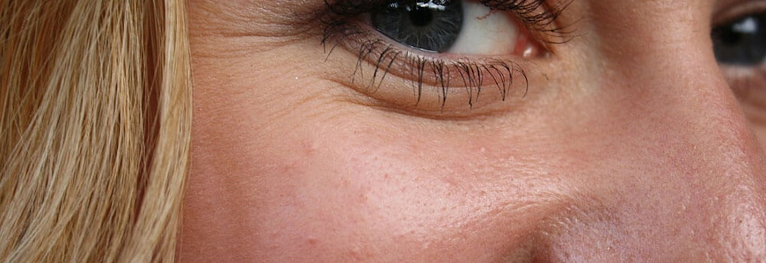 How to Smooth Facial Wrinkles and Lines