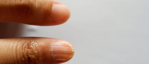 Premier Dermatology partners Abnormally shaped finger nail How to Treat Nails with Abnormal Shape and Texture