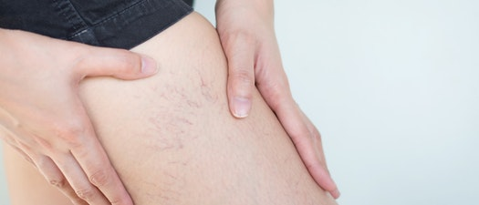 Person with spider veins on their leg How to Treat Spider Veins Before Swimsuit Season
