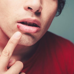 How You Can Treat Cold Sores and Other Herpes Symptoms