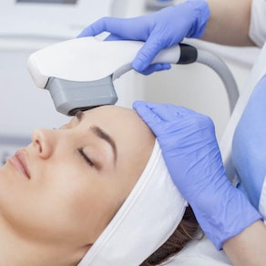 Intense Pulsed Light (IPL): What You Should Know