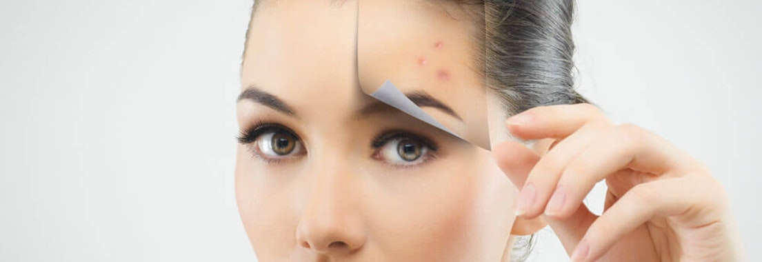 Is There a Cure for Adult Acne?