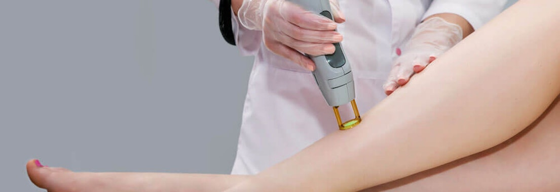 Premier Dermatology Partners laser hair removal treatment Laser Hair Removal: Show Off Your Smoothest Skin Ever