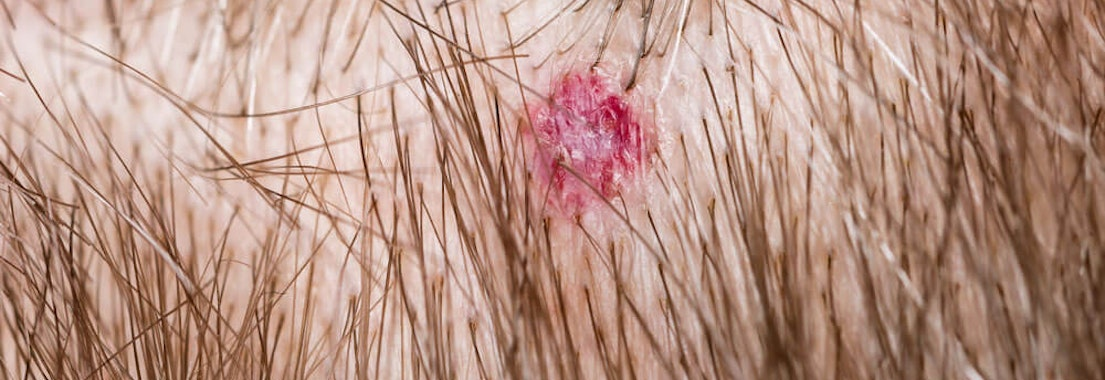 Lesion on a scalp Mohs Surgery to Remove Scalp Lesions: What to Expect