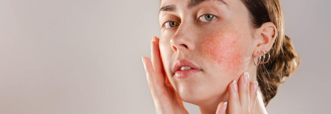 Woman's face with rosacea Not Sure if Your Rash is Rosacea? Your Dermatologist Can Help