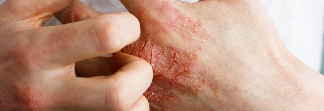 Preventing Infection, Cracking, and Discomfort in Your Eczema