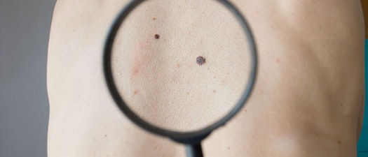 Premier Dermatology Partners doctor evaluating a mole Skin Cancer Awareness Month: 3 Things to Watch Out for When You're Looking for Skin Cancer