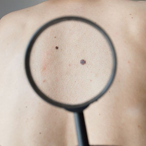 Skin Cancer Awareness Month: 3 Things to Watch Out for When You're Looking for Skin Cancer