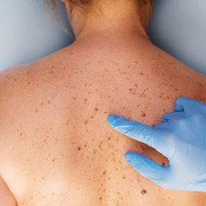 Skin Cancer Awareness Month: Can You Tell If a Spot is Cancerous?