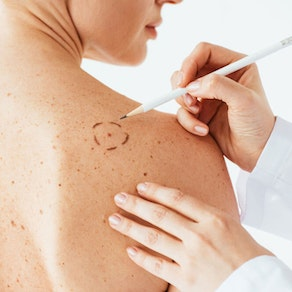Skin Cancer Awareness Month: Why You Should Never Leave Skin Cancer Untreated