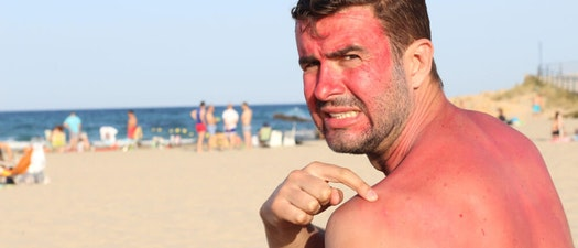 Sunburnt? Here's What to Do Now