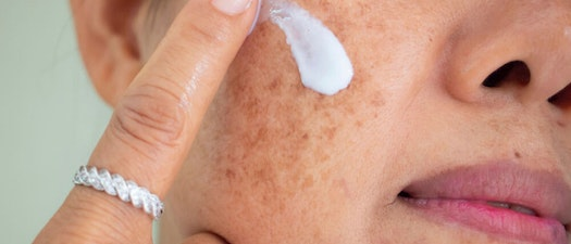 Top Treatment Options for Melasma and Brown Spots