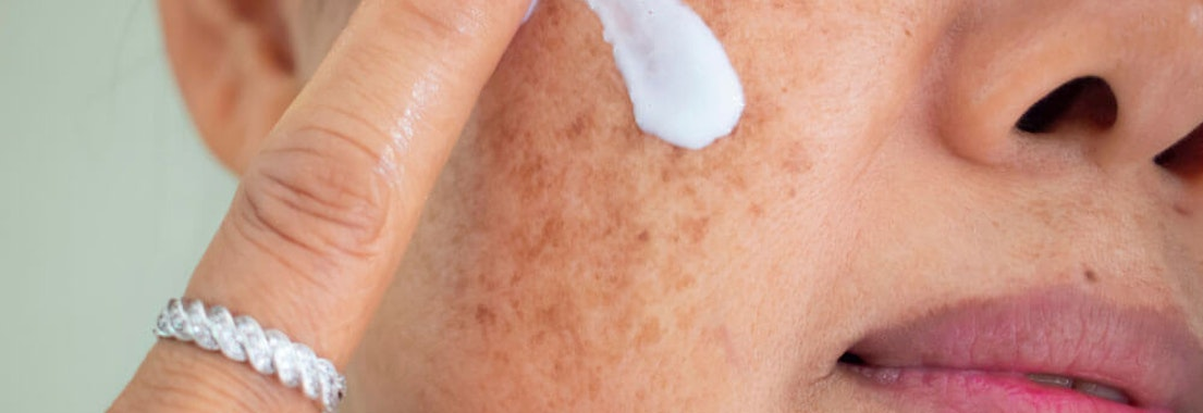 Premier Dermatology Partners brown spot treatment Top Treatment Options for Melasma and Brown Spots