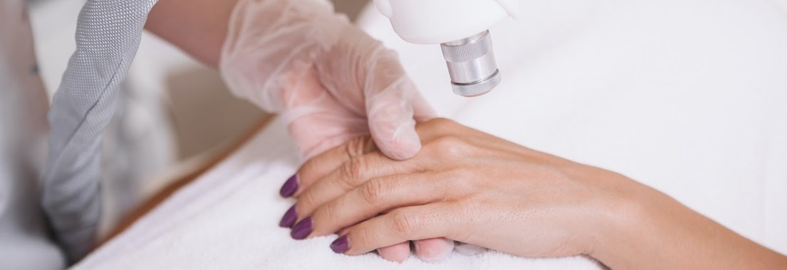 Person having pigmentation removed from their hand Unwanted Pigmentation? Enjoy Clear Skin with Laser Treatments