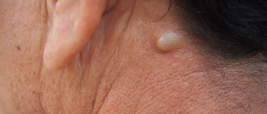 What are Cysts and How Can I Treat Them?