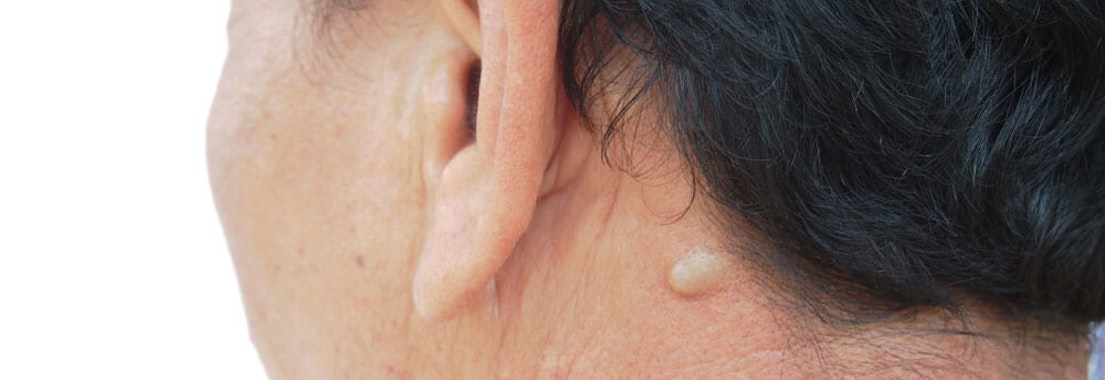 Sebaceous cyst on the back of a woman's neck What Are Sebaceous Cysts and How to Treat Them