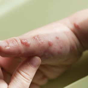 What Do I Need to Know About Shingles?