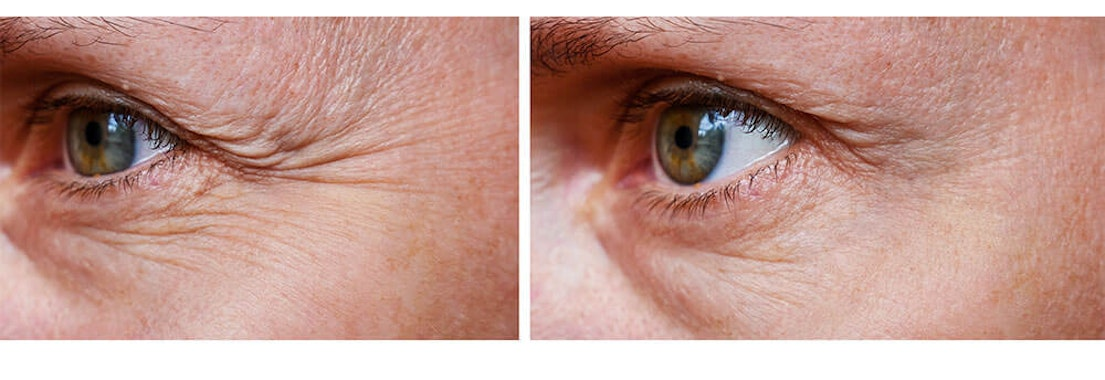 Women's eyes with crow's feet What To Do About Crow's Feet