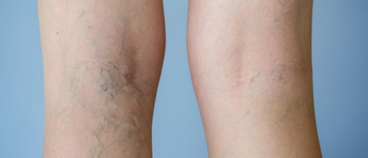 Leg veins on someone's knee What You Can Do About Leg Veins
