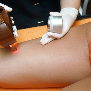 What You Should Do Before Your First Hair Removal Treatment