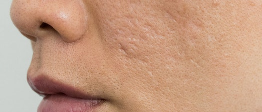 Premier Dermatology Partners acne scar evaluation Why You Get Acne Scars and How to Prevent Them