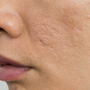 Why You Get Acne Scars and How to Prevent Them