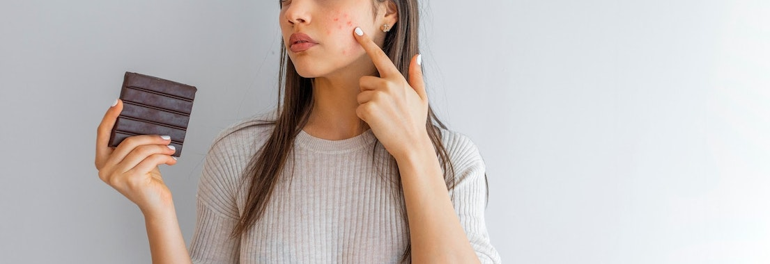 Woman with acne eating chocolate Worst Foods for Acne